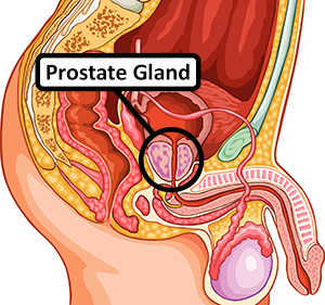 Male Reproduction System: Prostate