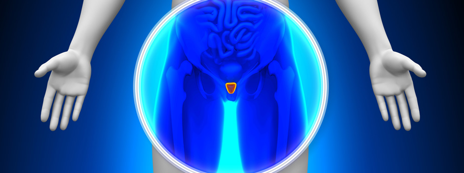 Medical X-Ray of the Prostate