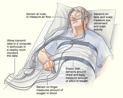 Sleep study illustration